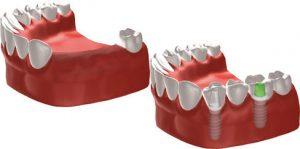 Ersatz mehrerer Zähne im Seitenzahnbereich durch eine implantatgetragene Brücke